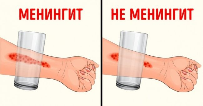 Тошкентга менингит касаллиги Россиядан кириб келган. Ундан қандай сақланиш мумкин?